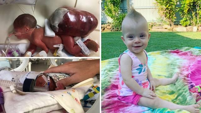 Nagovarali su je da pobaci, a kći joj je danas zdrava djevojčica