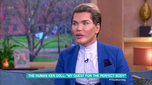 Šokirao svojim izgledom: Želi biti Ken, bio je na 50 operacija
