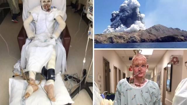 Preživio je erupciju vulkana, a sada uči kako ponovno hodati