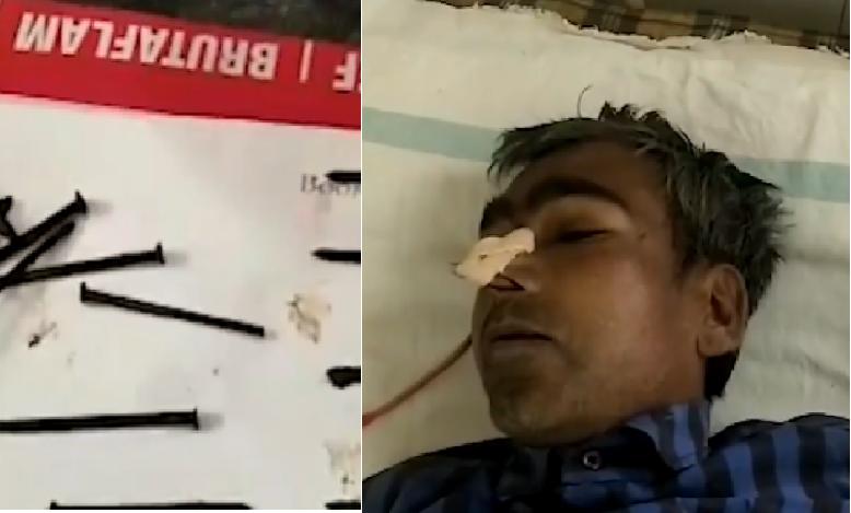 Treba imati sreće: Gutao čavle, vijke, žicu i preživio operaciju