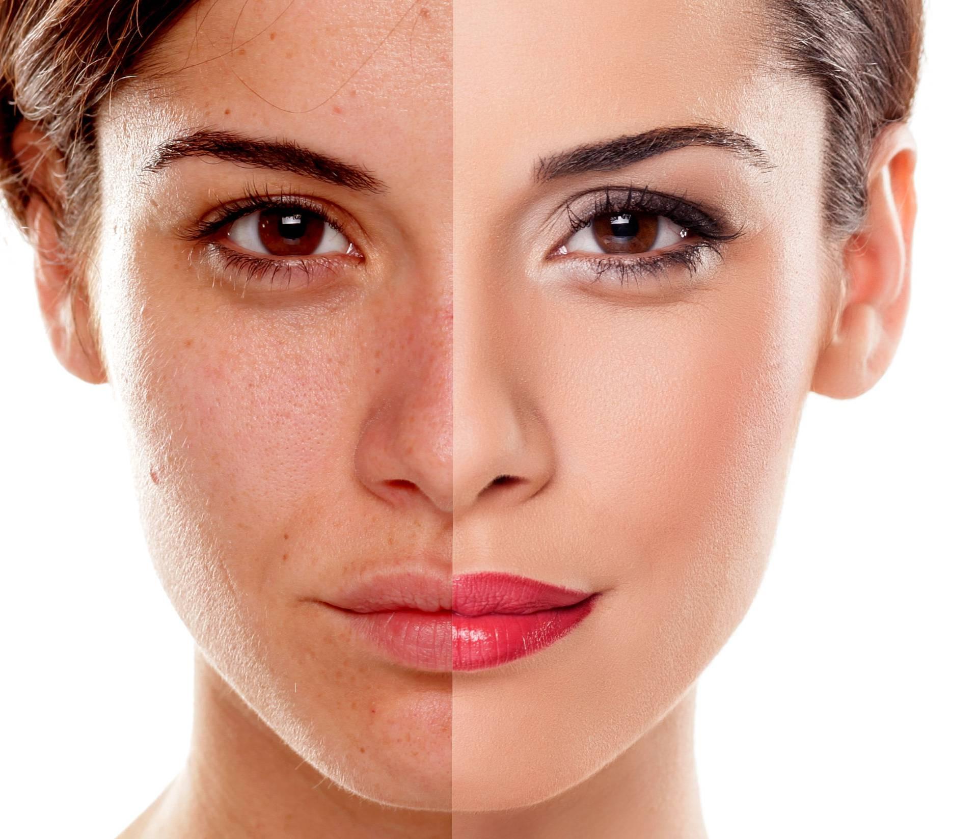 Spavate sa šminkom na licu? Riskirate infekcije očiju i kože!