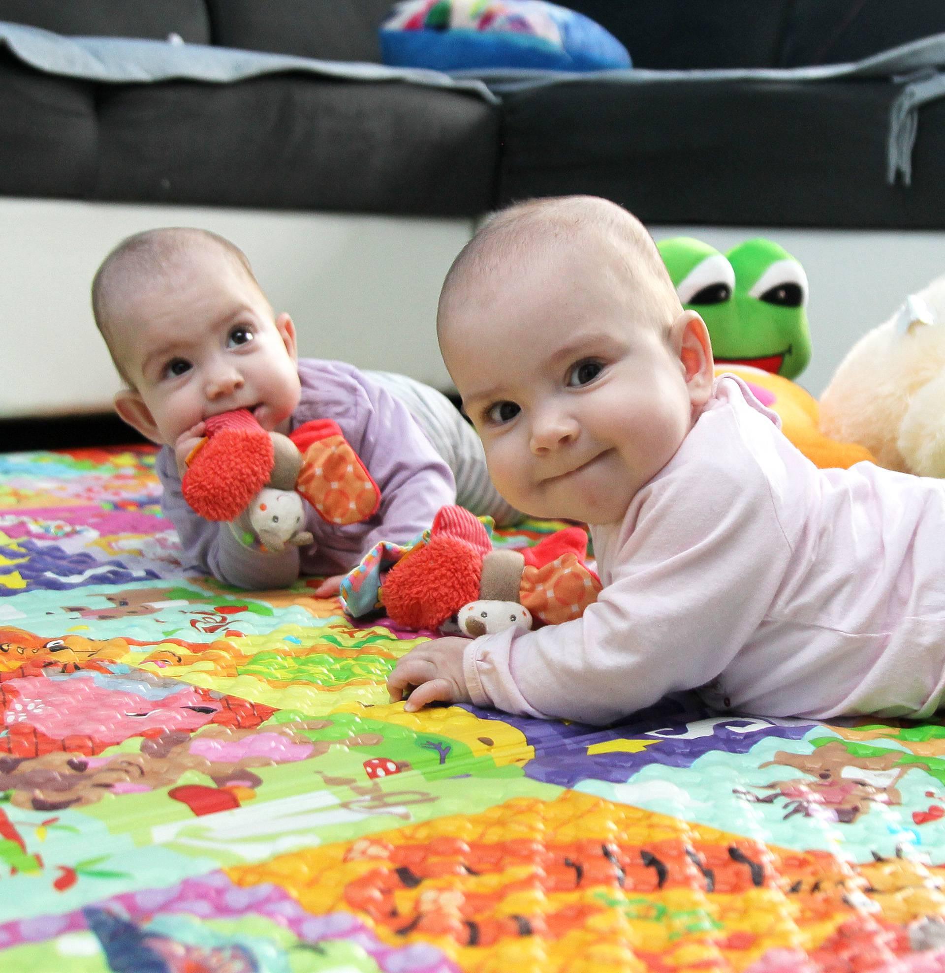 Sijamske blizanke iz Virovitice već govore i  stalno zovu tatu!
