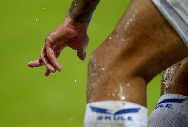 Velika Gorica: Igrač Osijeka, Igor Silva, tijekom pada na utakmici s Goricom slomio prst