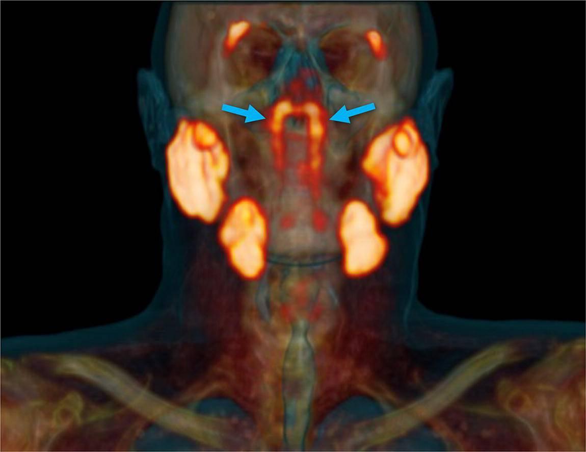 Slučajno su u glavi pacijenta s rakom otkrili sasvim novi organ