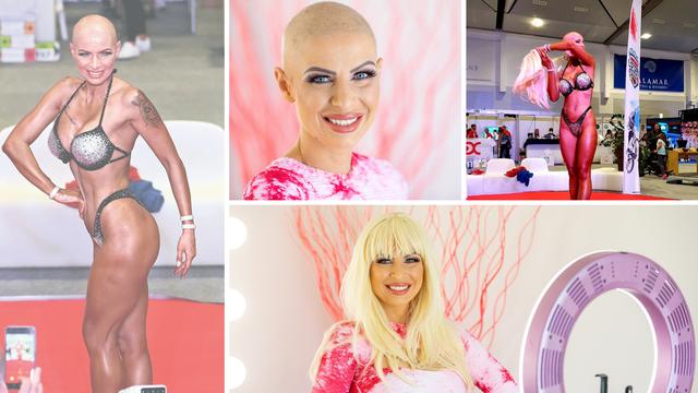 Skinula periku i svima pokazala da ima rak: Ne predajem se!