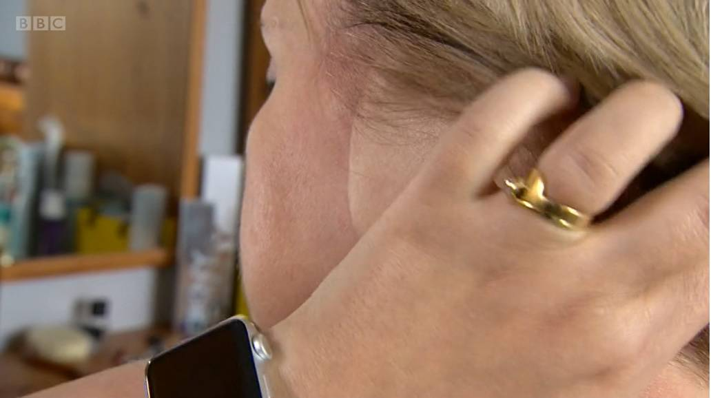 Žena kojoj je amputirano uho