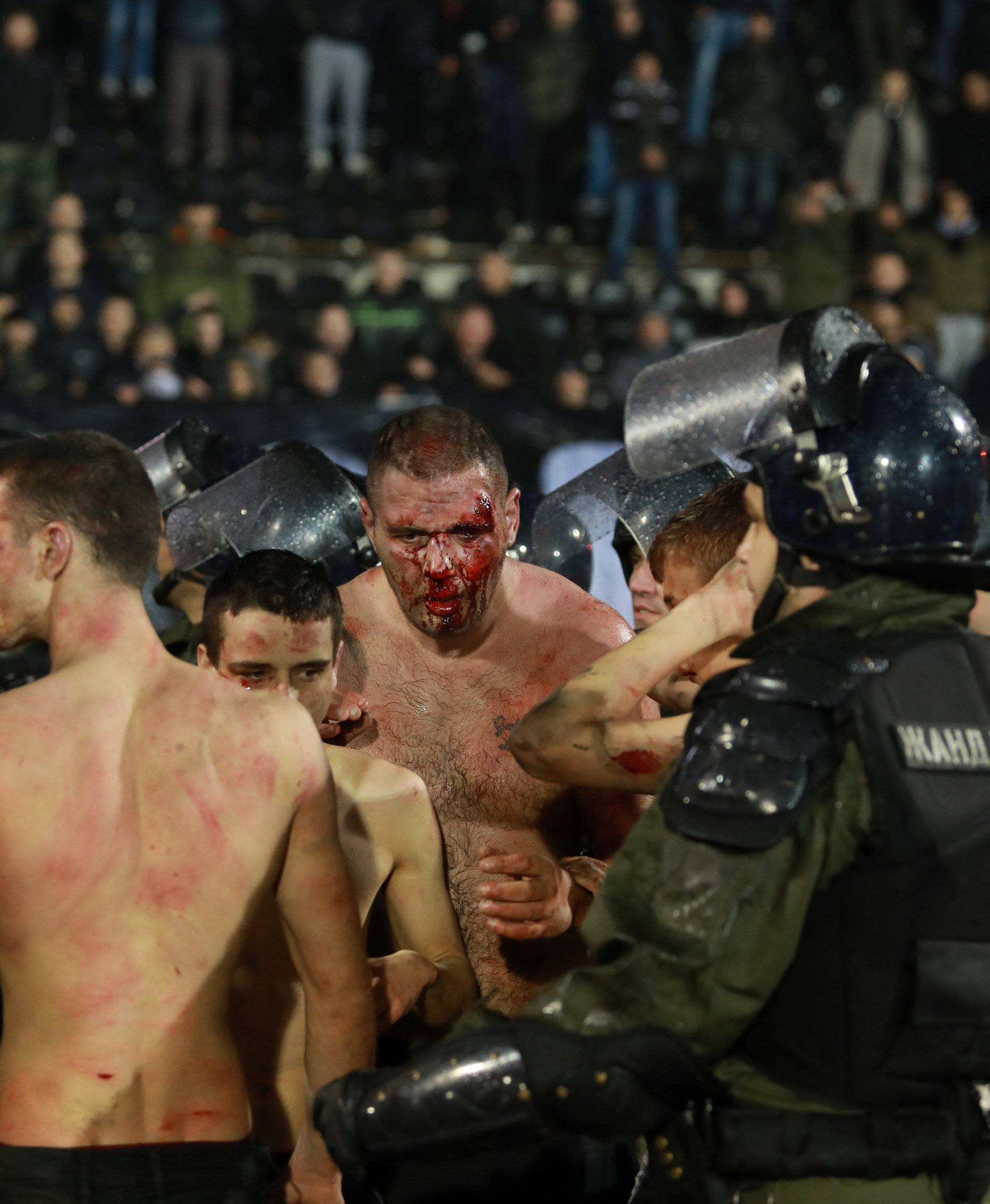 Police escort the soccer fans injured during the fights at a match between Red Star and Partizan in Belgrade