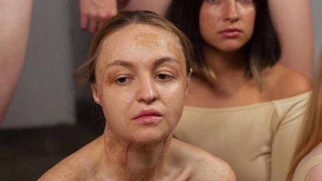 Ruskinje se aknama i celulitom bore protiv standarda ljepote