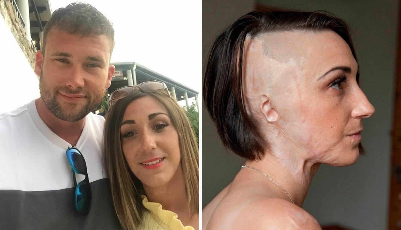 Pronašla je ljubav nakon što joj je bivši lice uništio kiselinom