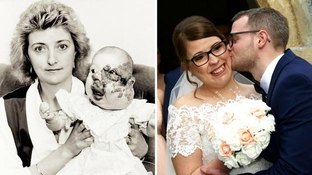 """Rodila se deformirana, ali nije odustala: """"Sretni kraj postoji"""""""