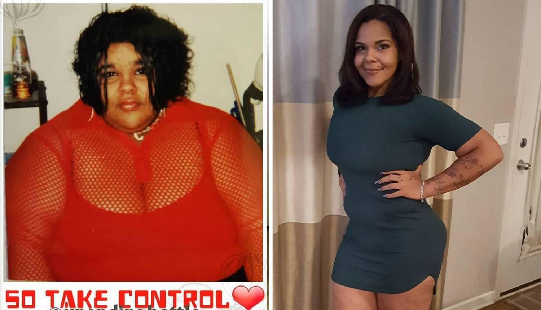 Izgubila je 127 kg: Neznanci joj daju novac za uklanjanje kože
