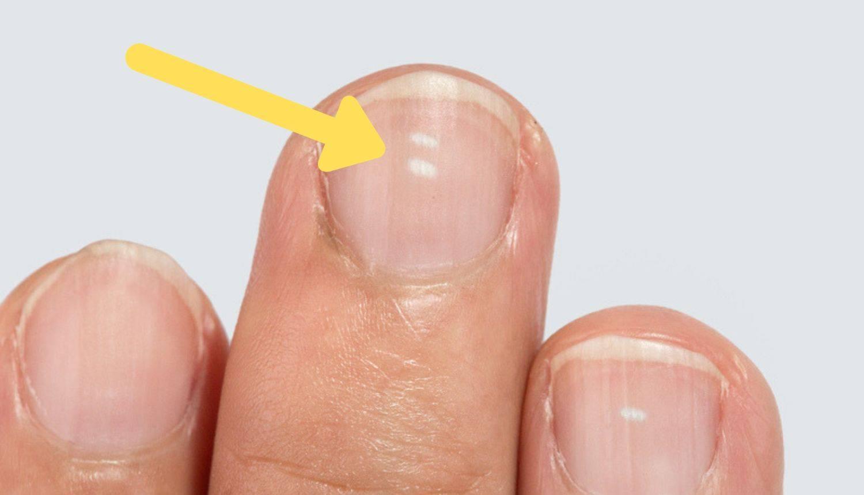 Znate li zašto ponekad imate male bijele mrlje na noktima?