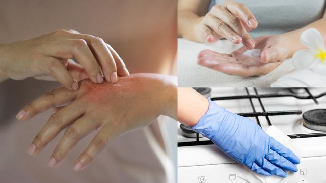 Ekcem na rukama: Što je uzrok te kako ga umanjiti i njegovati