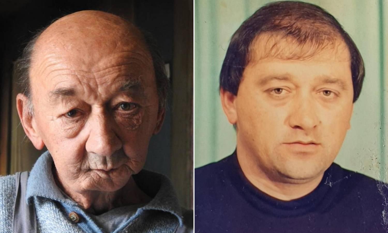 Franc: Liječnik mi je odrezao skoro pola lica i spasio mi život