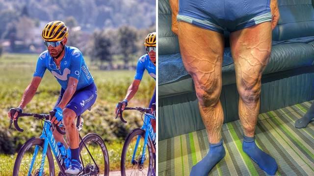 Pogledajte kako izgledaju noge biciklista nakon četiri sata utrke