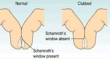 Jednostavan test prstima koji ponekad ukazuje na rak pluća