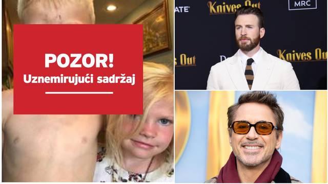Dječak je spasio sestru od psa, superjunaci ga hvale: Ti si heroj
