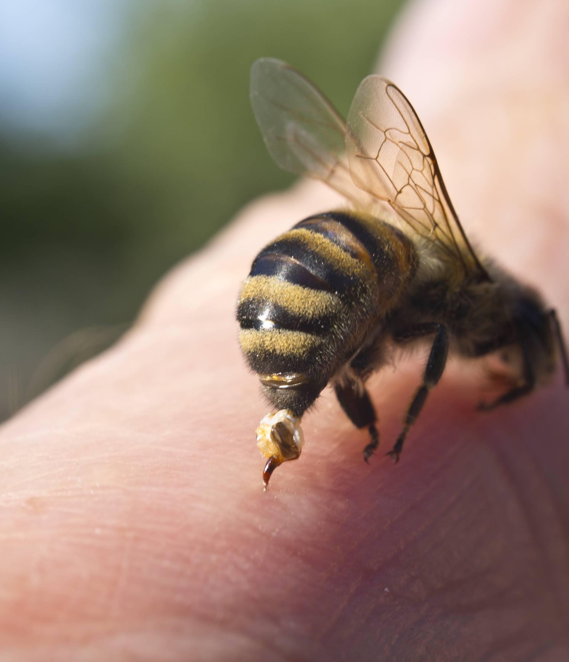 Super trik kako spriječiti bol i oticanje od uboda pčele, ose...