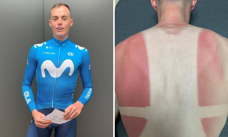 Biciklist trenirao u izolaciji  pa izgorio: Spržilo me na balkonu