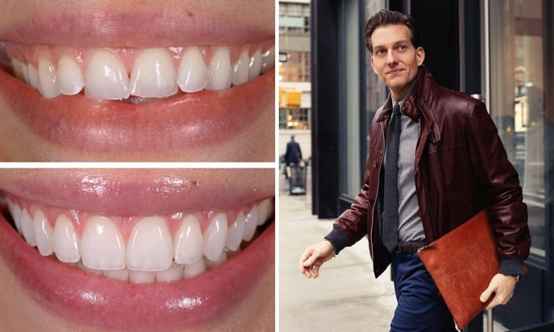Celebrity zubar: Za dizajnerski osmijeh plate i 500.000 kuna