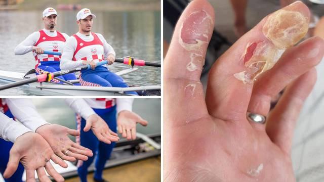 Kako izgledaju ruke Sinkovića nakon prvih ljetnih treninga...