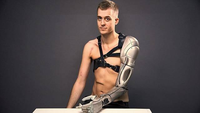 Polukiborg: Lijeva ruka mu je bionička, a ima punjač i dron