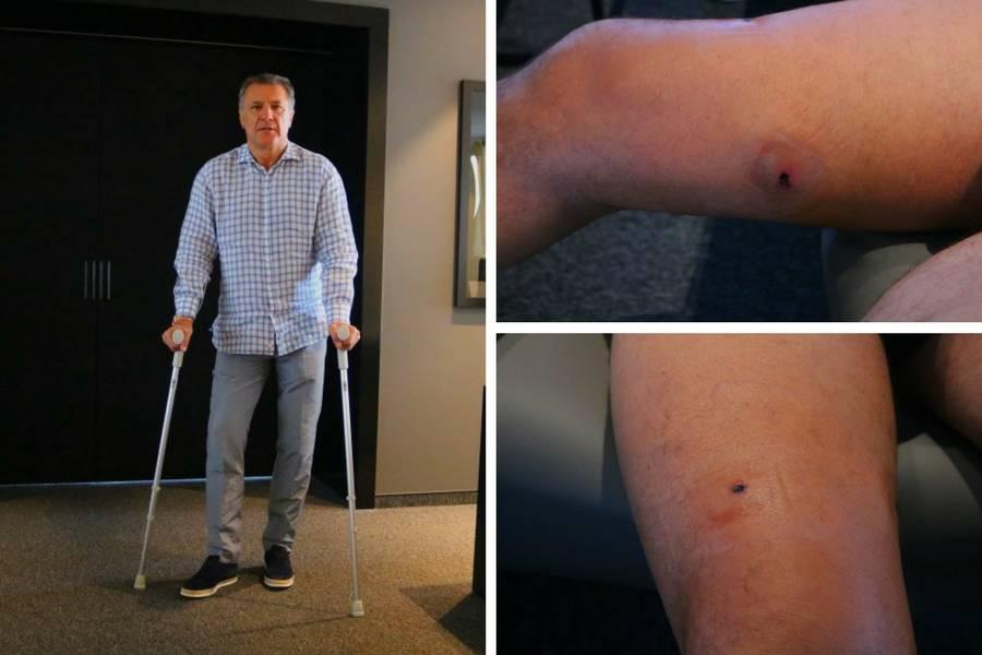 Mamić objavio fotografije rane: Hvala svima, vratit ću se jači!