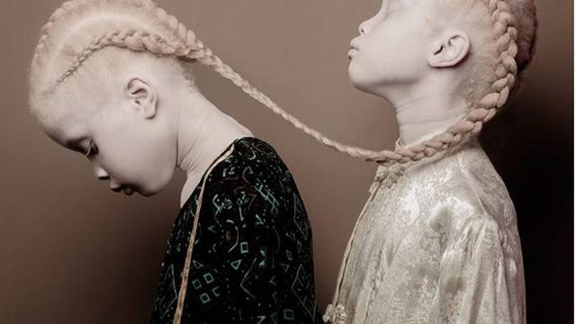 Albino blizanke osvajaju svijet: Lari i Mari je samo 11 godina...