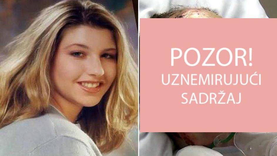 Majka objavila šokantne slike: Zapalio mi je kćer i promatrao