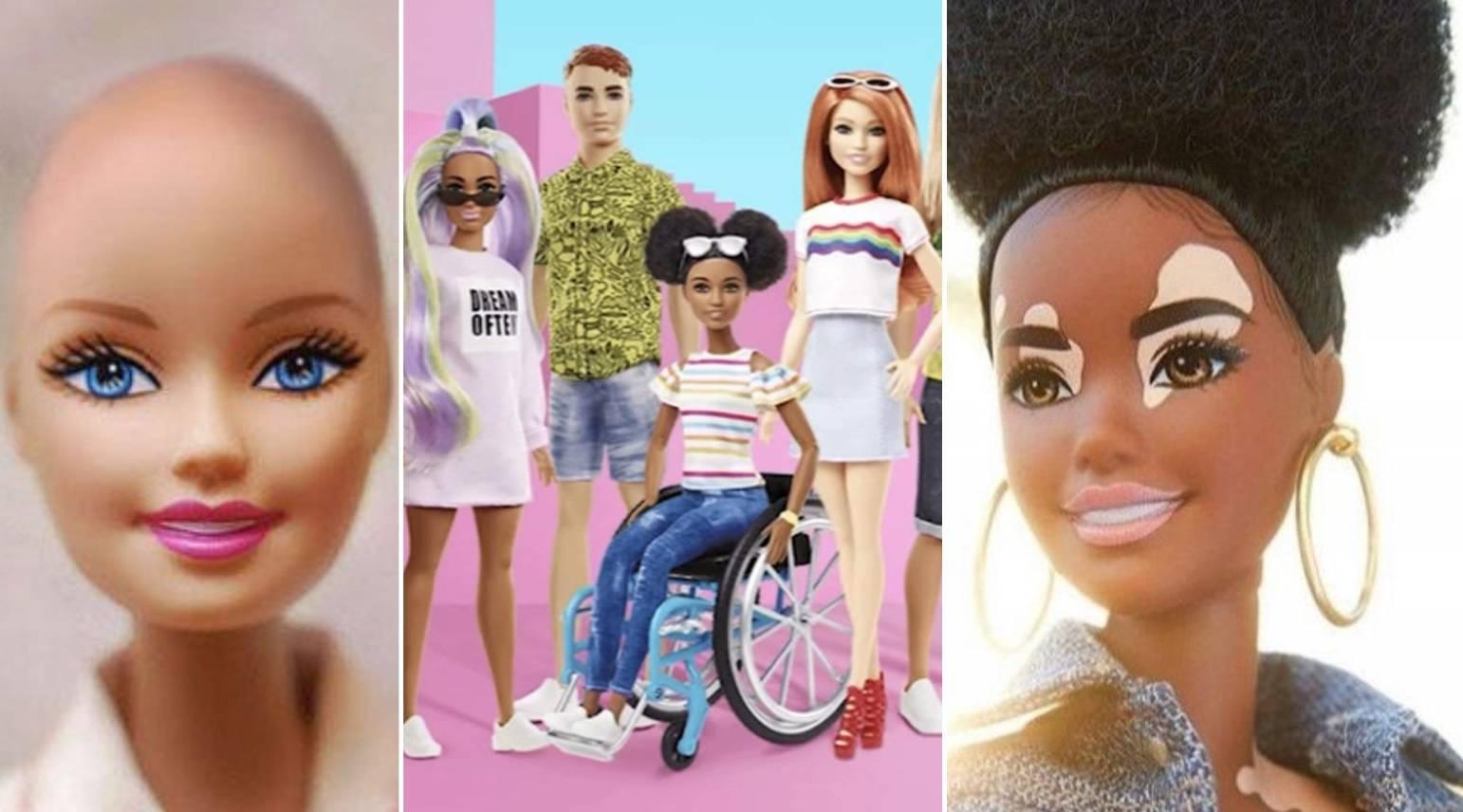 Omiljena lutkica: Barbie odsad dolazi s vitiligom i bez kose