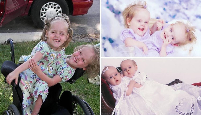 Sestre su se rodile spojene, a danas su zvijezde YouTubea