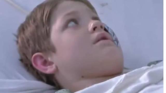 Štapić za ražnjiće probio glavu dječaku: Čudom je ostao živ...