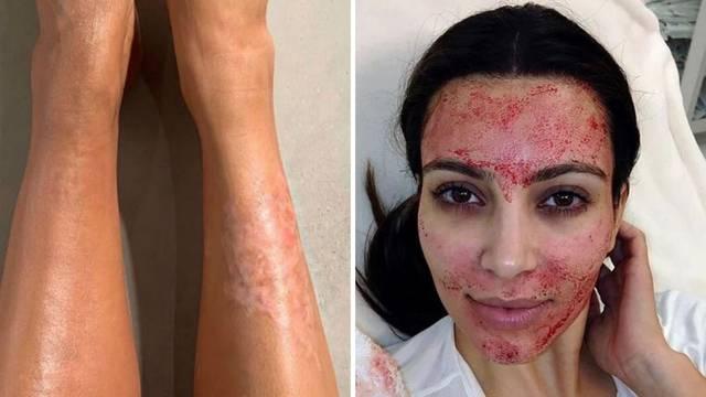 Borba sa psorijazom: Kim zbog rana prekriva tijelo puderom...