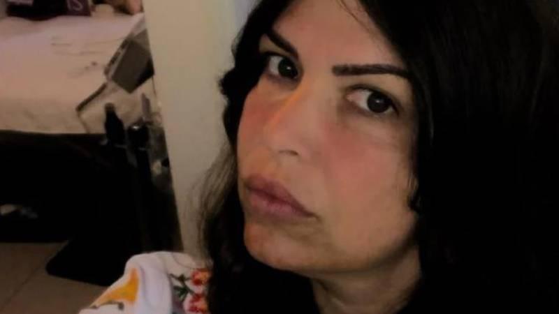 Žena iz Srbije botoksirala je na crno, radila i u Sl. Brodu: 'Meni je spalila lice i uništila zdravlje'
