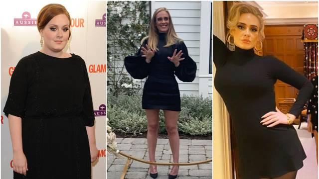 Stručnjaci sumnjaju: Adele je zatezala kožu i bila na botoksu