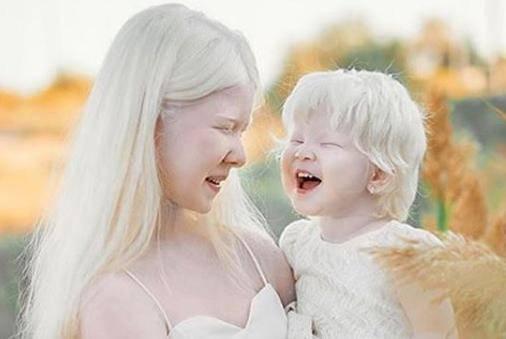 Predivne albino sestre osvajaju svijet, izgledaju kao dva anđela
