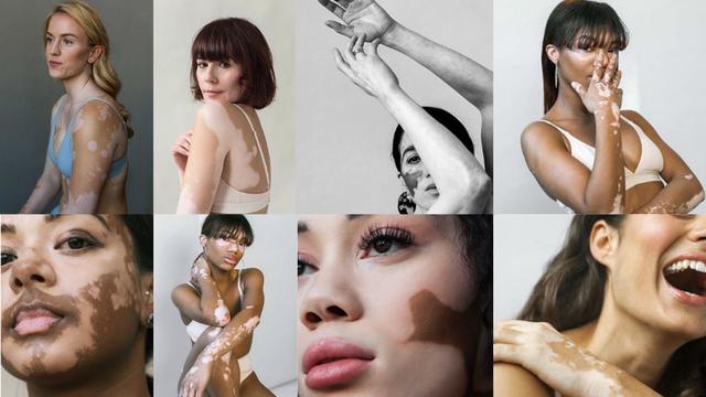 Fotografkinja s vitiligom: Ono što nas izdvaja čini nas lijepima