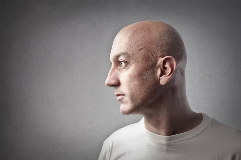 Masaža i češnjak definitivno ne pomažu u suzbijanju ćelavosti