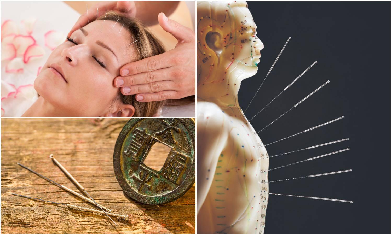 Akupunktura: Ugodno bockanje iglama budi vitalnu energiju