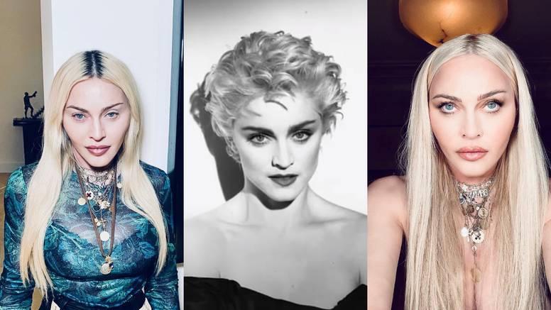 Fanovi zabrinuti za Madonnu zbog brojnih estetskih zahvata: 'Mislila sam da je vanzemaljac'