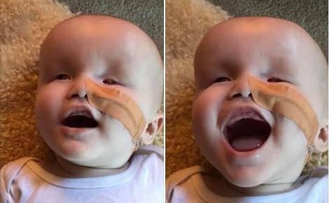 Majka skuplja novac za pomoć: Dječak se rodio bez očiju i gluh
