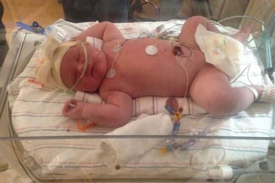Žena rodila bebu od skoro 7 kg: 'Zaglavila mi je ispod rebara!'
