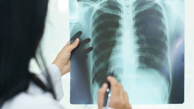 Female doctor examining about lungs with x-ray film - sick conce
