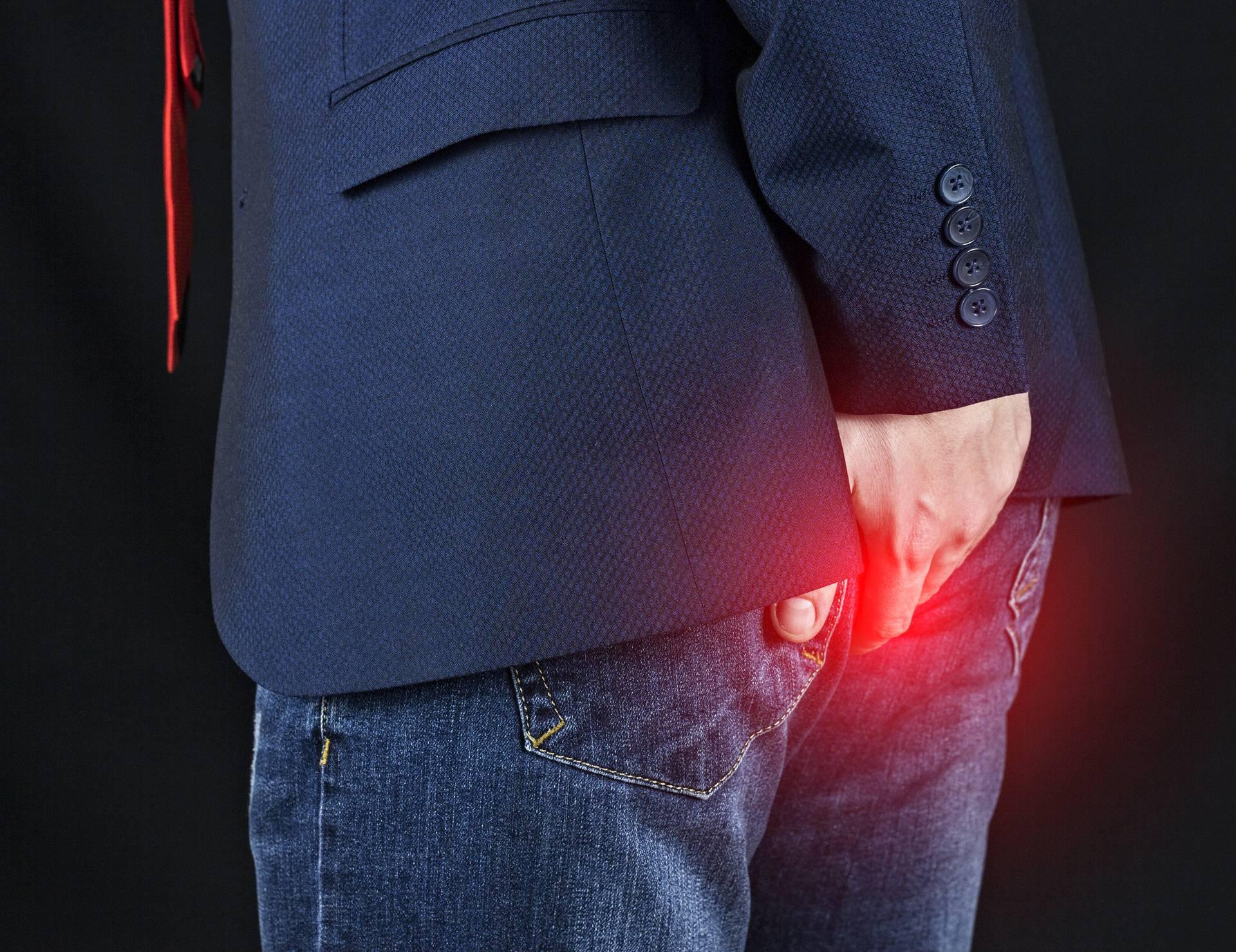 Zašto šutimo o epidemiji hemoroida i bolovima?