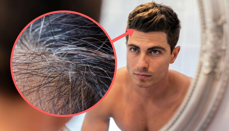 10 znakova manjka vitamina i minerala: Prosjeda kosa, umor