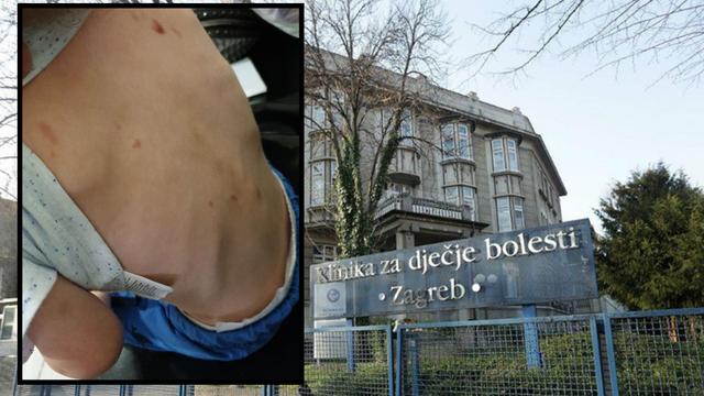 Zlostavljani dječak još u domu, a majka i dadilja su na slobodi