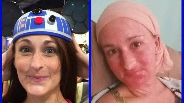 Godinu dana koža joj je gorjela i ljuskala se - sve zbog steroida