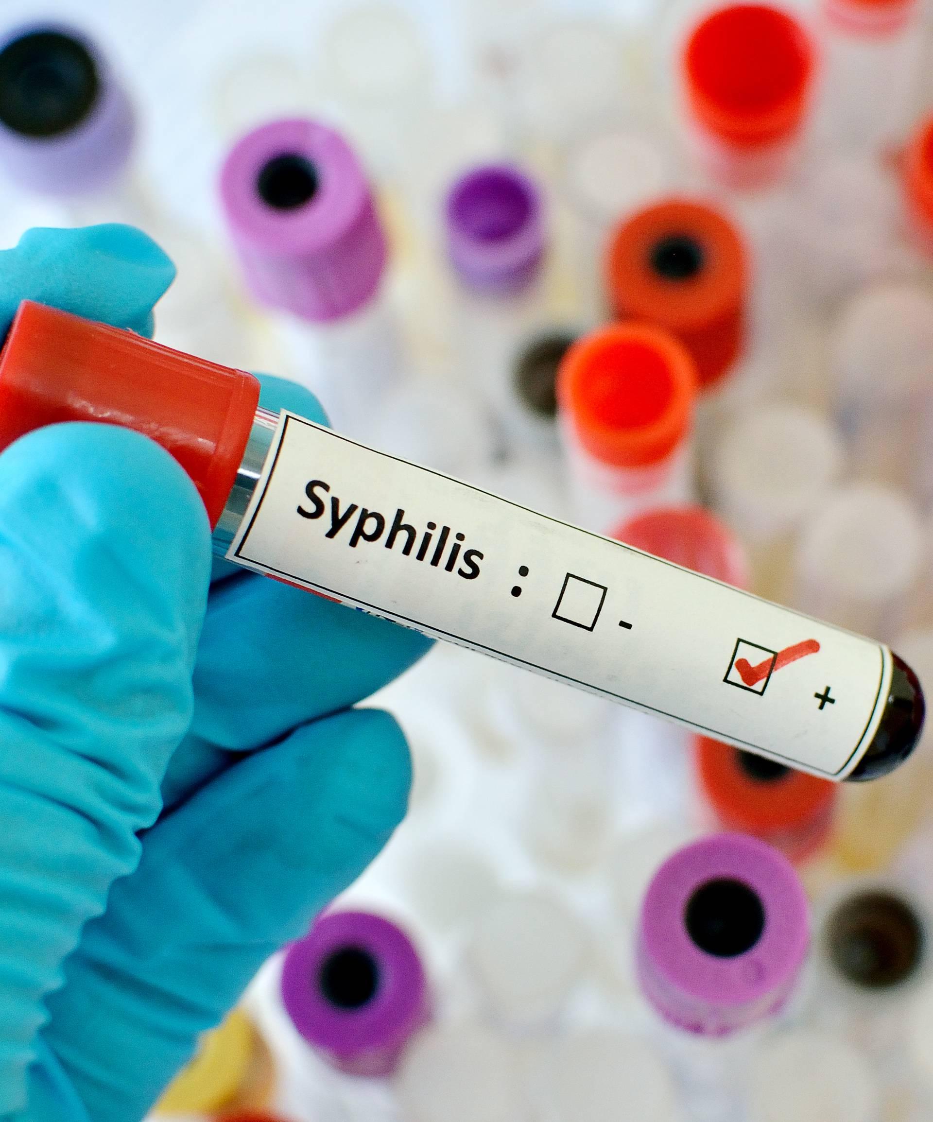 Sve više sifilisa, ali hrvatski liječnici poručuju: Bez panike...