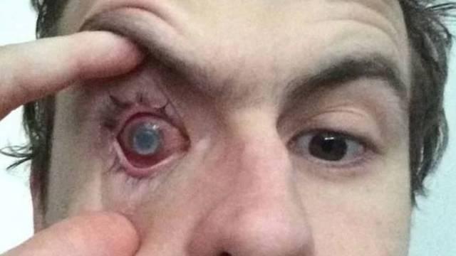 Oslijepio je na jedno oko - nije skinuo leću, a otišao se tuširati
