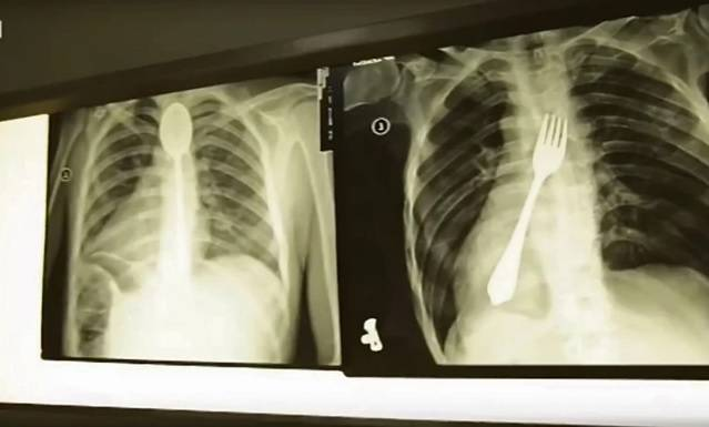 Šok u Beogradu: U želucu mu našli 9 žlica i četkicu za zube